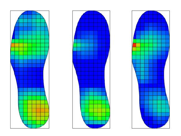 foot plantar pressure measurement