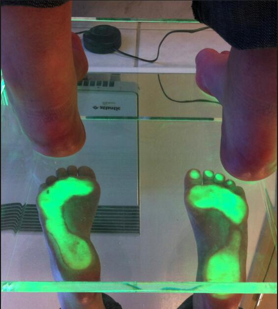 gait analysis foot pressure measurement